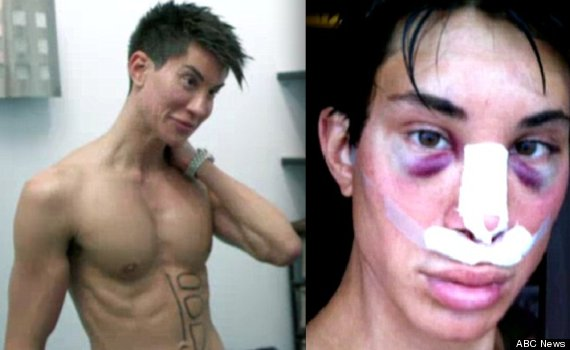 justin jedlica beaten up by surgery doctors
