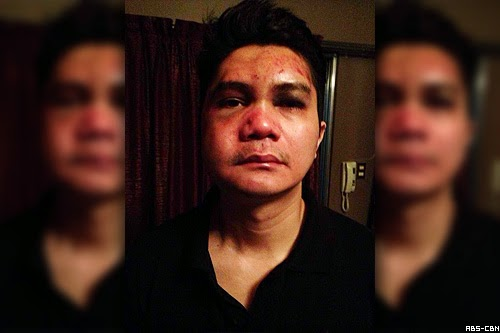 first photo of Vhong Navarro beaten up