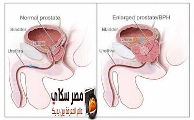 ماذا تعرف عن سرطان البروستاتا وأهم النصائح للوقاية منه Prostate Cancer