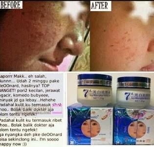 Deoonard Cream Untuk Menghilangkan Jerawat Secara Aman Ampuh Dan Alami