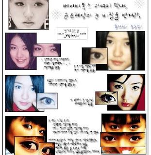 Yoon Eun Hye Operasi Plastik, Benarkah?