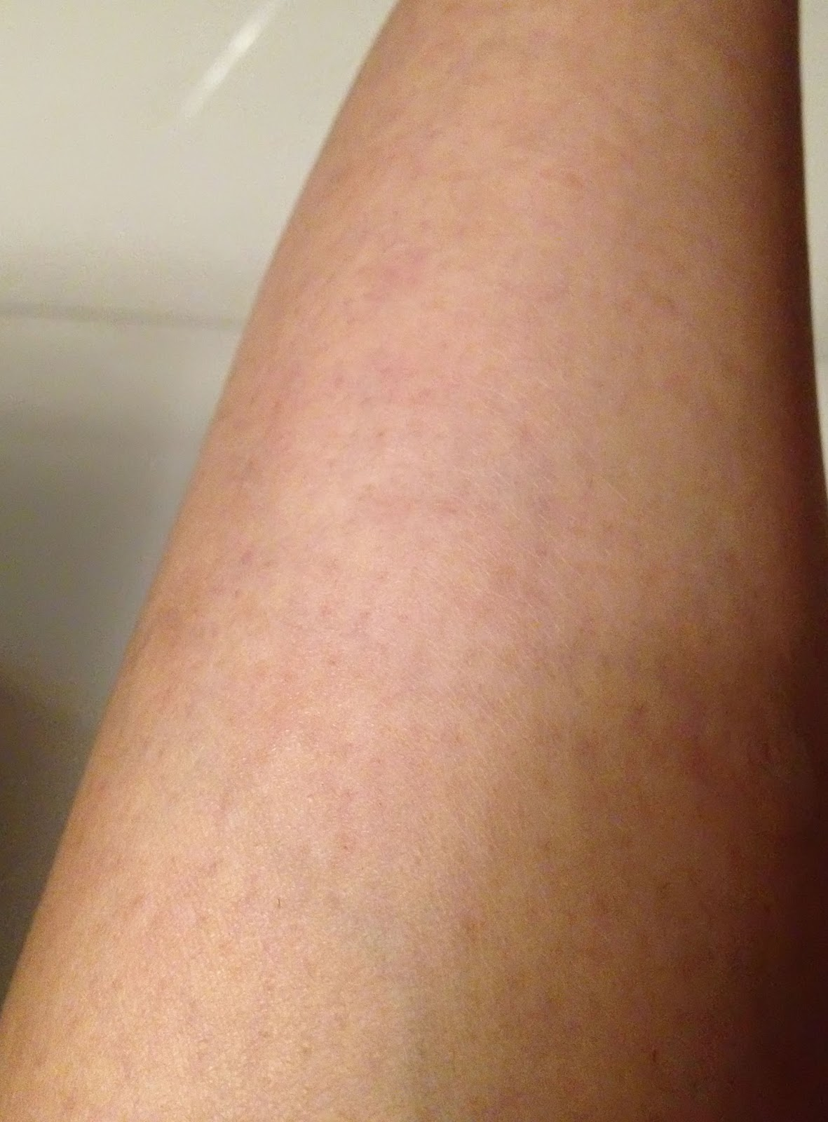how to get rid of peeling skin on legs
