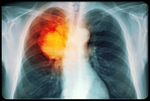 lung cancer s5 lung cancer xray Gemini Cancer Cusp Compatibility With Libra