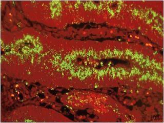 Hình 3: Phát hiện, ở đỉnh những tế bào các hốc, Lawsonia intracellularis, bằng miễn dịch huỳnh quang (mầu xanh) trên tiêu bản tổ chức kết tràng, nhờ một kháng thể đơn dòng (X400, cliché LDA 22)