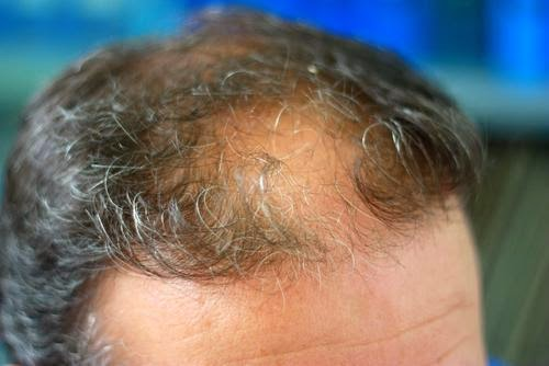Why people suffer from hair falling problem?