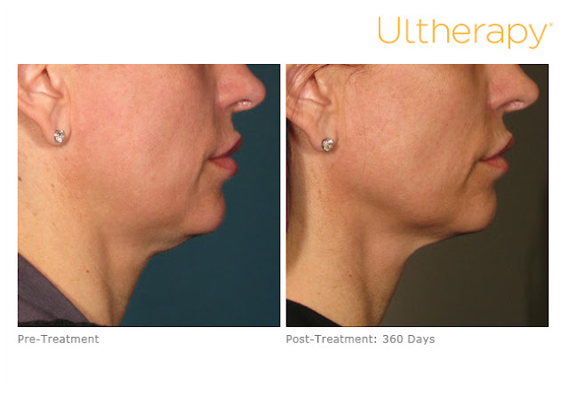 Ultherapy-Before-And-After-Chin-Jaw-Neck