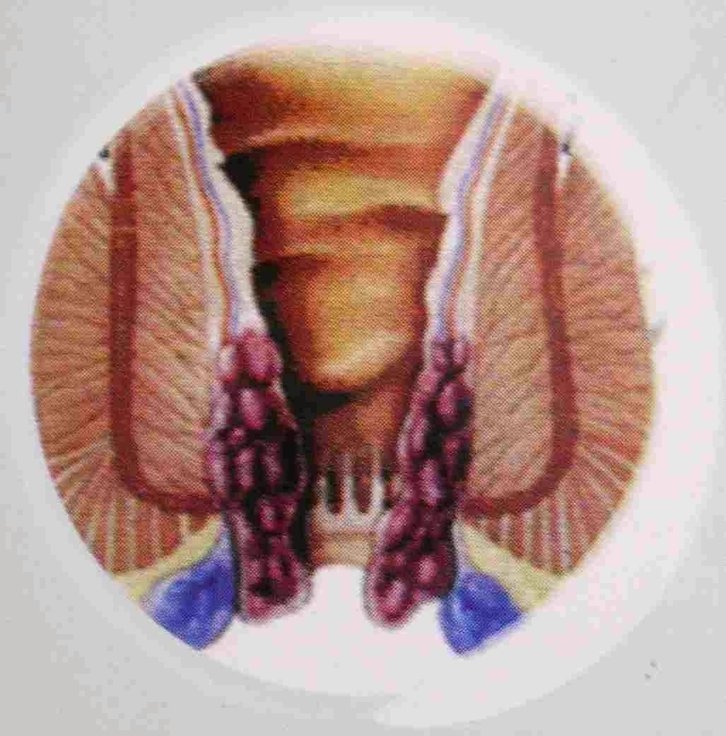 Pengobatan untuk penyakit Hemorroid
