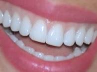 A mi manera c mo blanquear los dientes de forma natural en casa - Como blanquear los dientes en casa ...