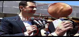 الكشف عن سر المرض الغريب الذي ظهر على بشار الأسد .