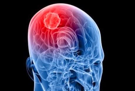 obat herbal tumor otak jinak