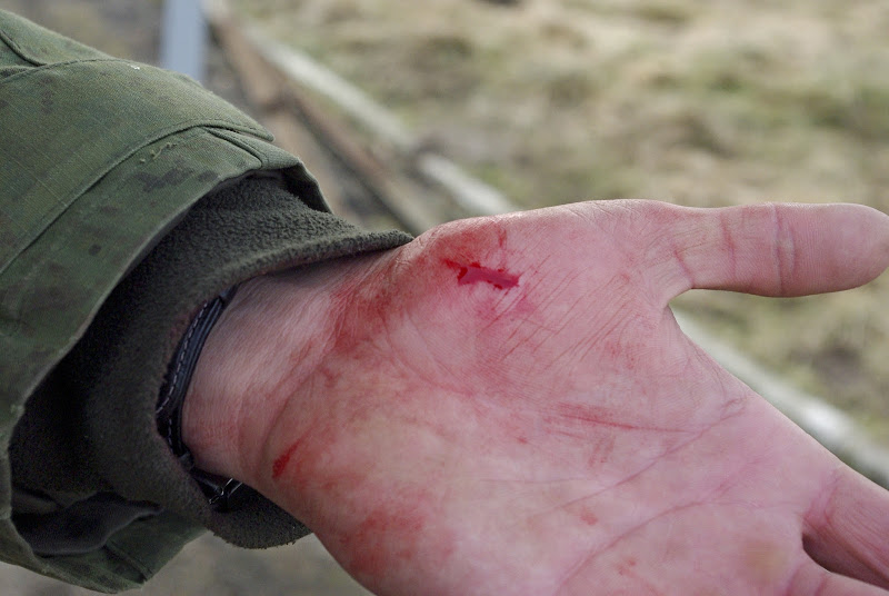 Приснилась рана с кровью