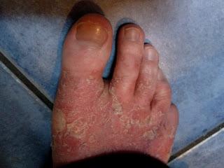 stop eczema