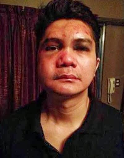 Anne Curtis Vice Ganda Cry Over Vhong Navarro Critical