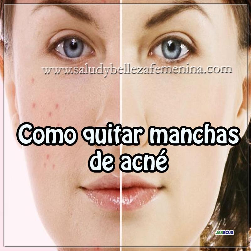 Como quitar manchas de acn web de la belleza femenina - Como sacar las manchas ...