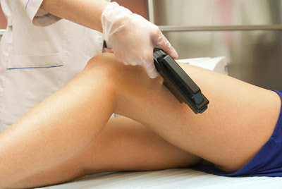 A Typical Laser Hair Removal Treatment