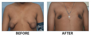 Male Breast Reduction Kerala India