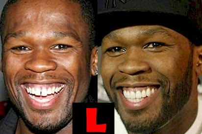 how to have a great smile with bad teeth