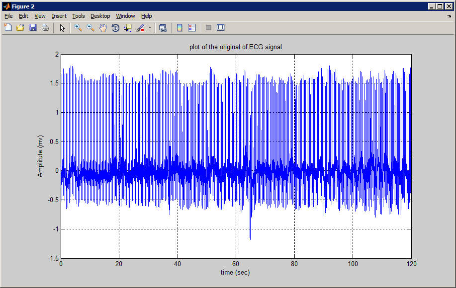 digital signal processing in matlab Signal processing toolbox™ provides functions and apps to analyze, preprocess, and extract features from uniformly and nonuniformly sampled signals the toolbox includes tools for filter design and analysis, resampling, smoothing, detrending, and power spectrum estimation.