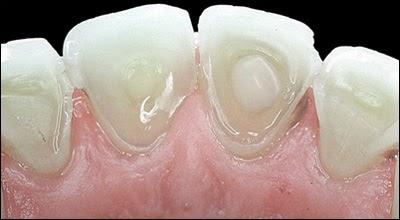 Mesa AZ Dentist Dental Implants