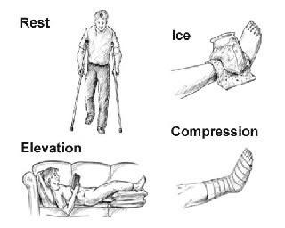 Penanganan Cedera Pada Engkel (ankle) dengan RICE