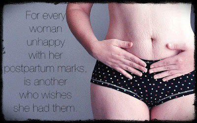 For every women unhappy with her postpartum marks, is another who wishes she had them.