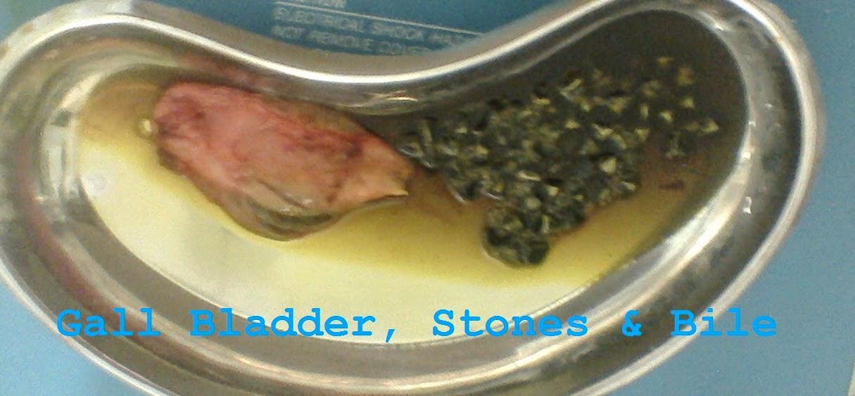 Gall Bladder, Stones & Bile
