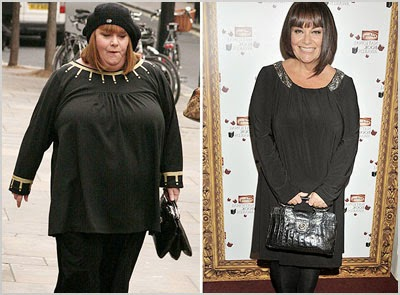 Dawn French Weight Loss You Can Lose Weight No...