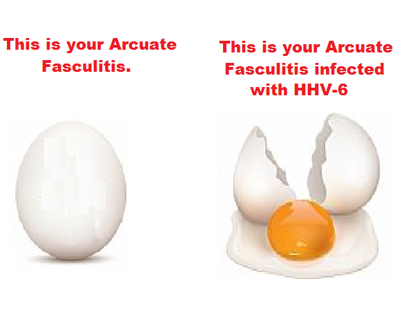 cartoon, hhv-6, arcuate fasculitis, infection, hhv-7,