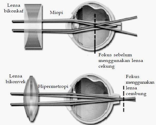 miopi dan hipermetropi