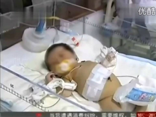 Imagem do bebe gravido, na China