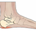 10 Folk Remedies for Heel Pain (Plantar Fasciitis)