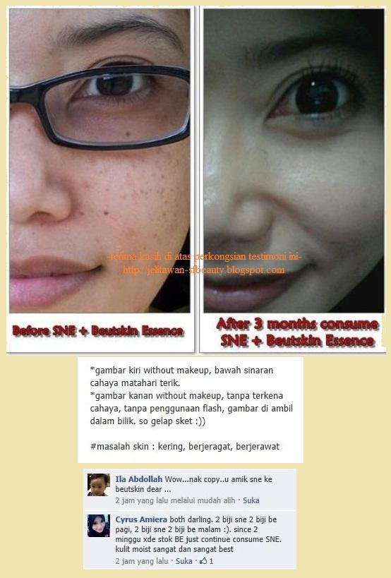 http://3.bp.blogspot.com/-VdLnoVRemew/UGxiZ8B8qBI/AAAAAAAABRI/ByFVXl8z15o/s1600/testimoni+terbaru+sne+beutskin+essence.jpg