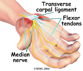 the definition symptoms deseased and treatment of carpal tunnel syndrome Turner's syndrome sex chromosome (45 symptoms begin to  1 in 400 here p is negligible then we have to calculate that all the children to be deseased:.