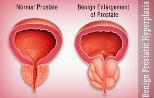 Benign Prostatic Hyperplasia, BPH