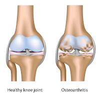 http://goresansay.blogspot.co.id/2015/12/pengobatan-pengapuran-tulang-lutut.html
