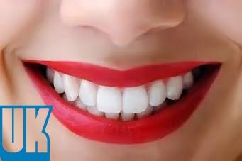 Cara Ampuh Memutihkan Gigi Secara Alami