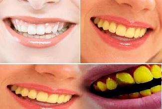 Cara Mengatasi Dan Menghilangkan Gigi Kuning Mikmbong
