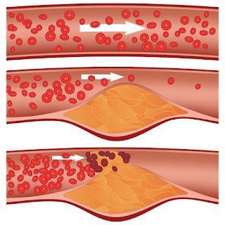 كيف تقلل نسبة الكوليسترول في الدم؟