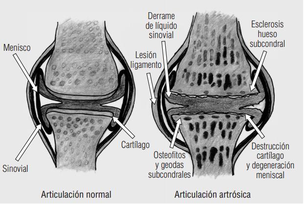 Tecnicos Radiologos: Clasificación Radiológica de la Artrosis ...