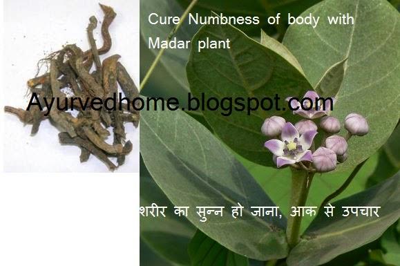 Body Ka Sunn Ho Jana in Ayurveda , शरीर का सुन्न हो जाना आक से उपचार