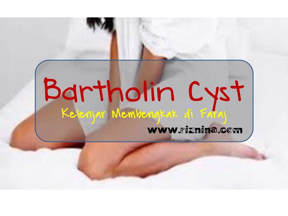 apa itu bartholin cyst