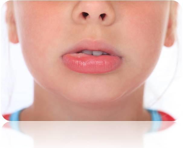 Swelling Below Lower Lip - Doctor insights on HealthTap