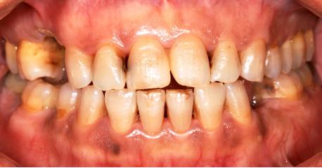 Healthy Living 5 Tips Memutihkan Gigi Untuk Perokok Aktif