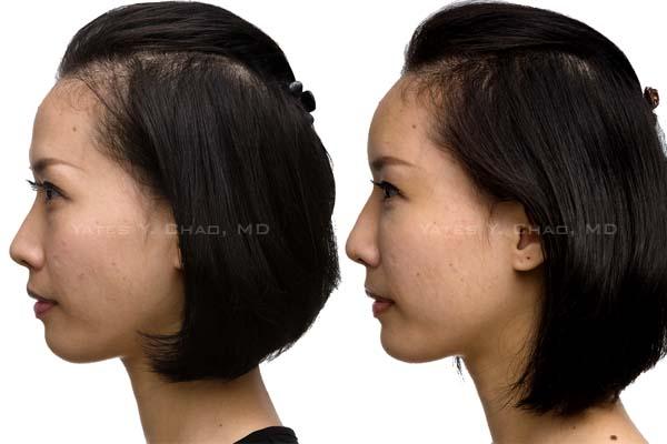 水微晶玻尿酸全臉雕塑,微整形也能大變臉