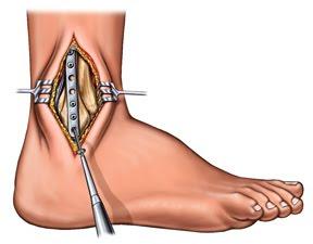 cirurgia de artrodese de tornozelo