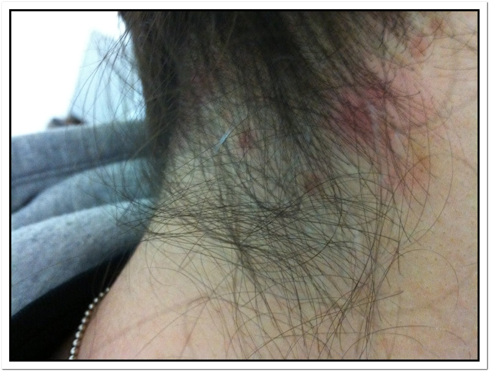 Rash On Back of Neck Hairline