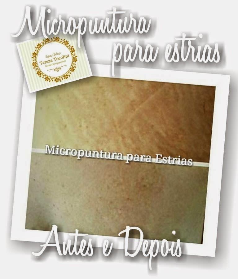 Conheça a Micropuntura para estrias!