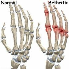 Kebaikan Advanced Joint Health Shaklee