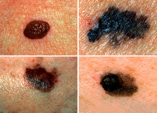 skin cancer types pictures