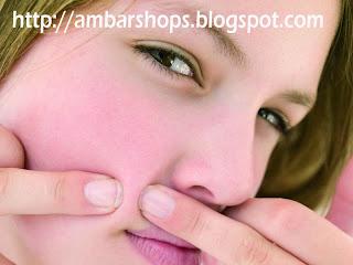 http://ambarshops.blogspot.com/2013/06/cara-menghilangkan-jerawat-dan-bekas-jerawat.html